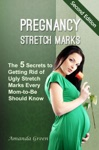 Pregnancy Stretch Marks The 5 Secrets To Getting Rid Of Ugly Stretch Marks Every Mom-to-Be Should Know
