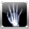 X-Ray (X-Ray câmera)