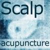 Scalp Acupuncture HD