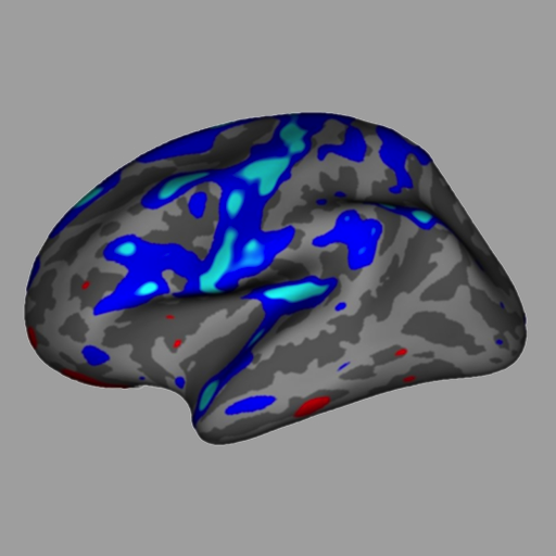 iSurf Brainview Desktop