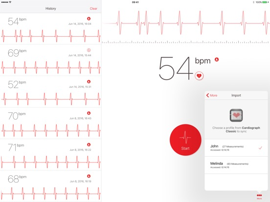 Cardiograph Screenshot