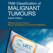 TNM Classification of Malignant Tumours, 8th Ed