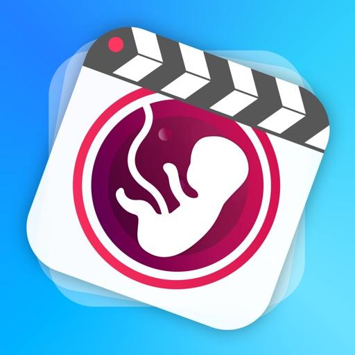 BellyMotion孕肚運動-製作你的孕期視頻