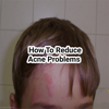 How to reduce acne problems Wiki