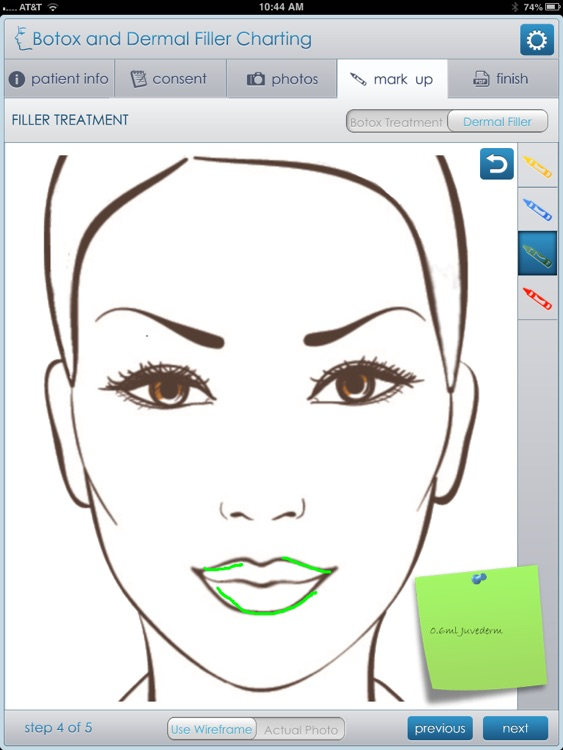 Botox and Dermal Filler Charting by Peter BOULDEN